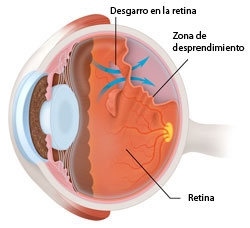 Detached retina 01 250px Spanish 1